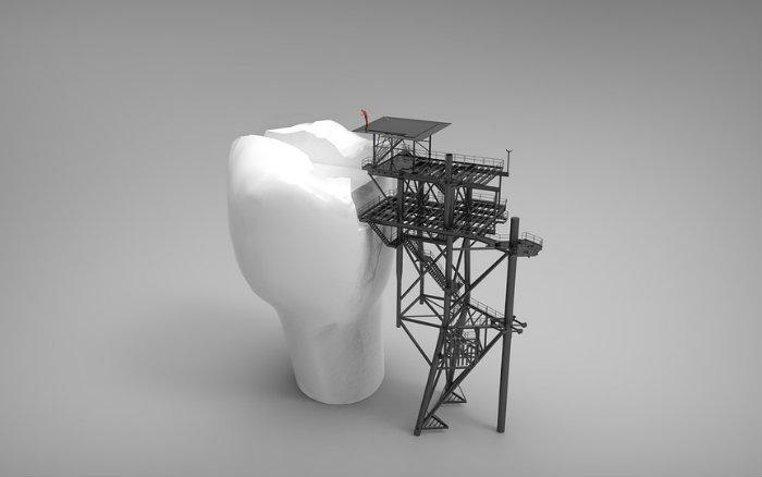 Imagem de dente ilustrando guia sobre coberturas de plano odontológico