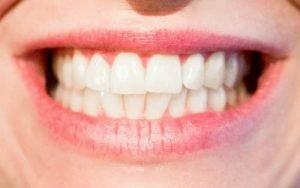 Imagem de sorriso para ilustrar texto sobre clareamento dental