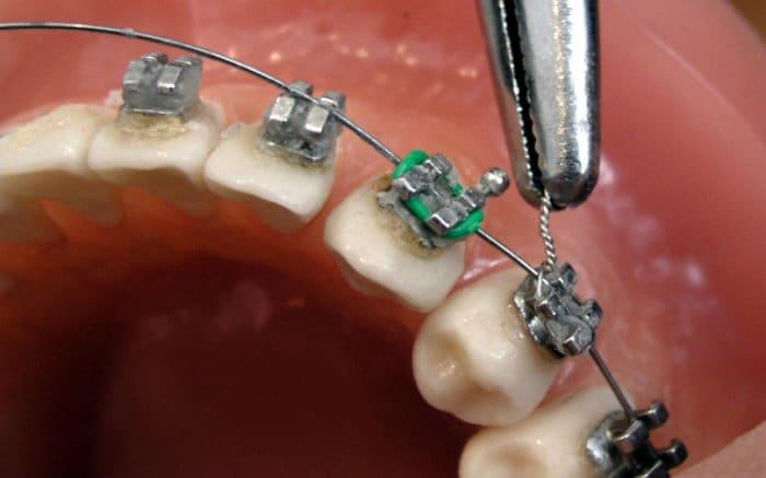 Imagem de dente com aparelho para ilustrar texto sobre aparelho ortodôntico