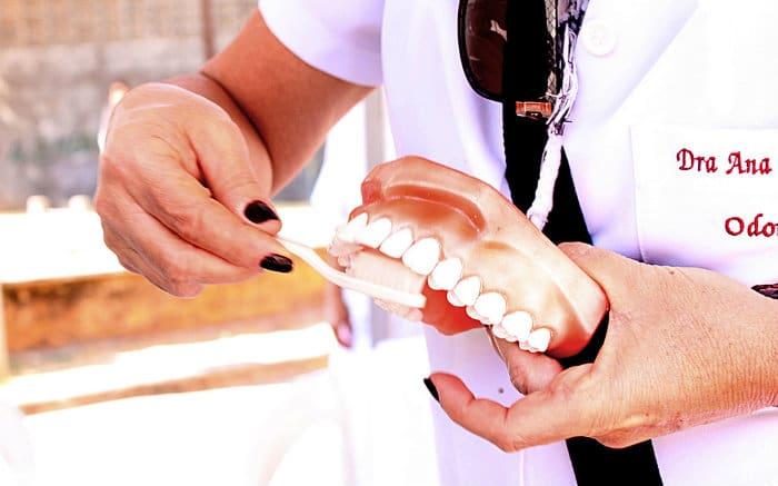 Imagem de dentadura para ilustrar texto sobre ponte dentária móvel