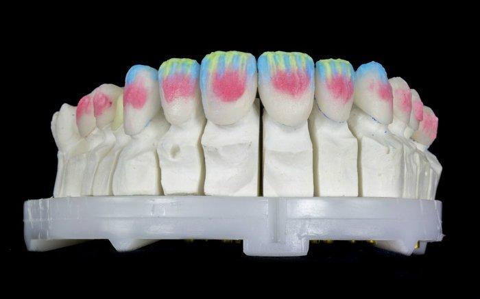 Imagem de dentes para ilustrar texto sobre o que é prótese dentária