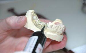 imagem de molde dentário para ilustrar texto sobre a diferença entre prótese e implante