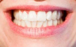 Imagem de sorriso para ilustrar texto sobre tratamentos dentários estéticos