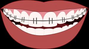 Desenho de boca com dentes com aparelho para ilustrar texto sobre cuidados com os dentes com aparelho.