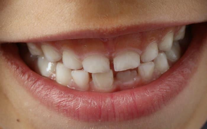 Imagem de sorriso de criança para ilustrar texto sobre aparelho ortodôntico infantil