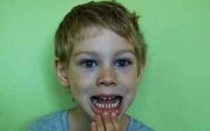 Imagem de criança mostrando os dentes para ilustrar texto sobre dente de leite