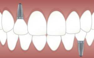 Desenho de dentes implantados para ilustrar texto sobre implantodontia