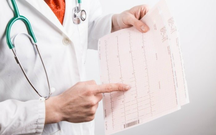 Imagem de médico com exame na mão para ilustrar texto sobre diária de UTI.